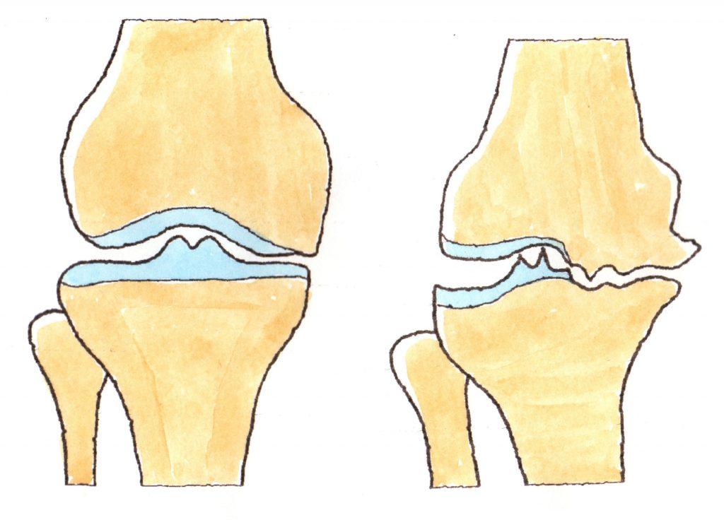 膝 に 水 が たまる 自覚 症状